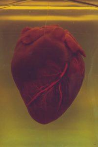 Abbildung Herz